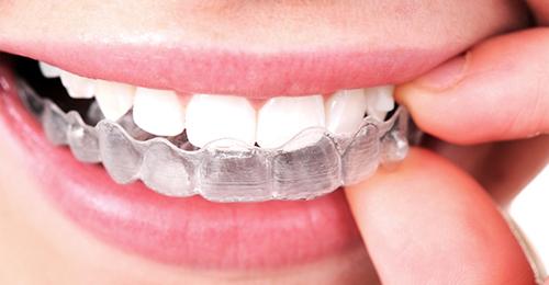 invisalign-orthodontie